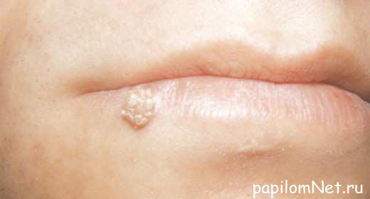 Изображение папилломы на нижней губе