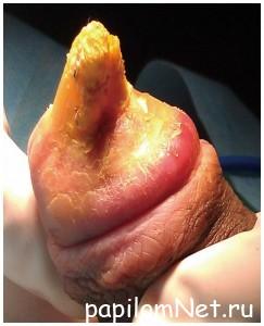 Фото злокачественной кондиломы